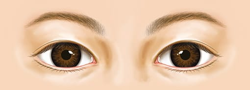 Normal eye shape image