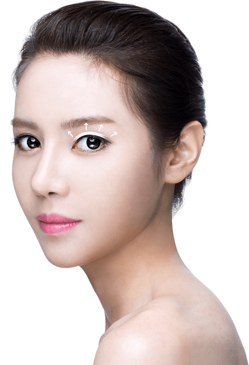 Incision double eyelid surgery model